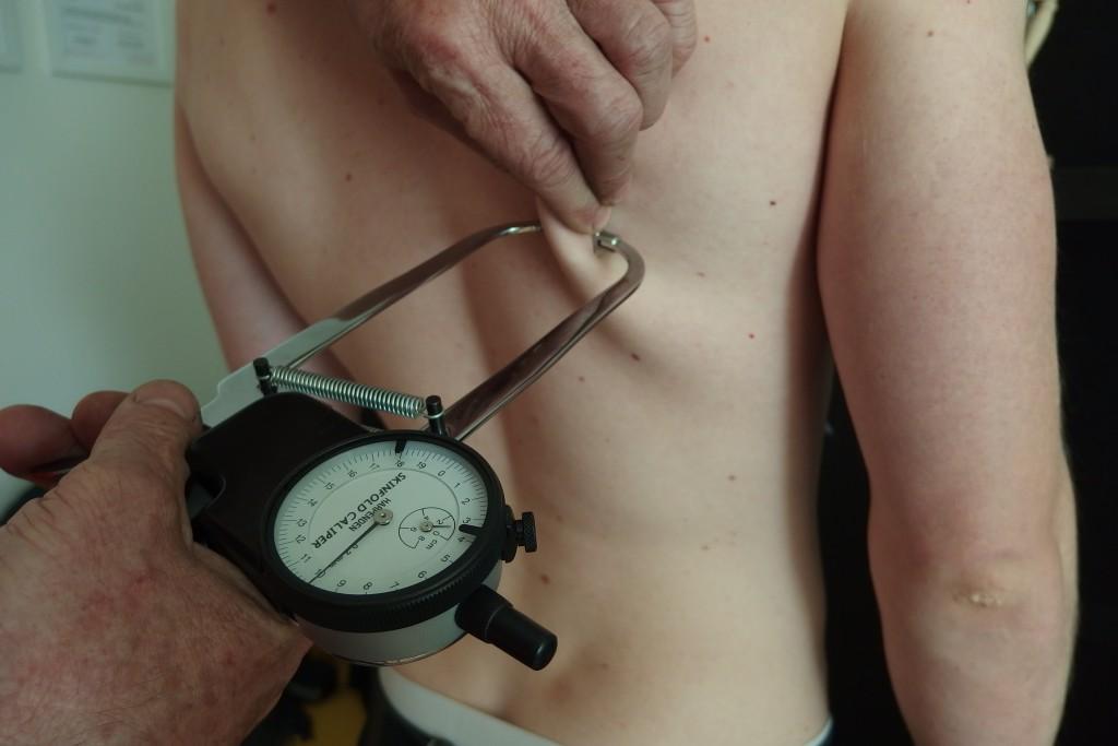 Měření tloušťky podkožních řas pod lopatkou.